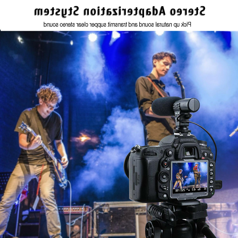 External Interview Video Recording Camera MIC